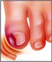 infected_ingrown_nail